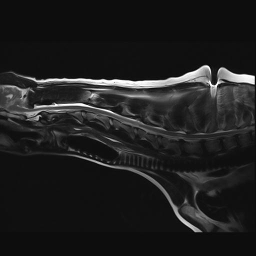 MRI scan of Ellie's neck.