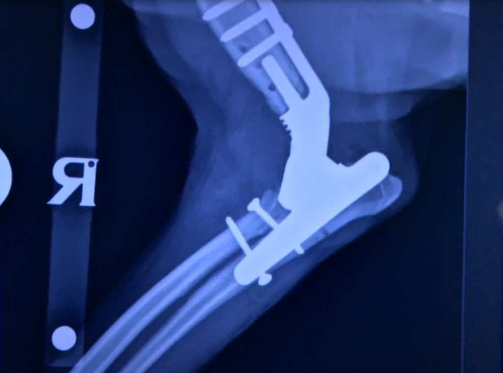 X-Ray image of Bodie's leg after the total elbox replacement with the new implant in place